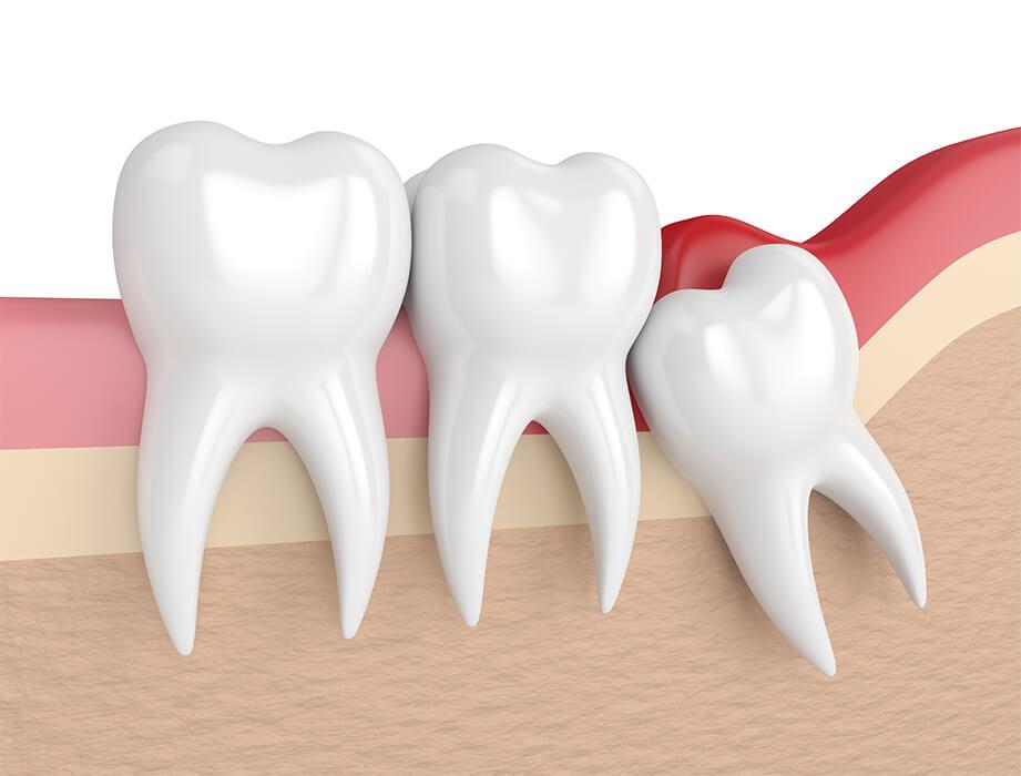 Résultats de recherche d'images pour «dents de sagesse»
